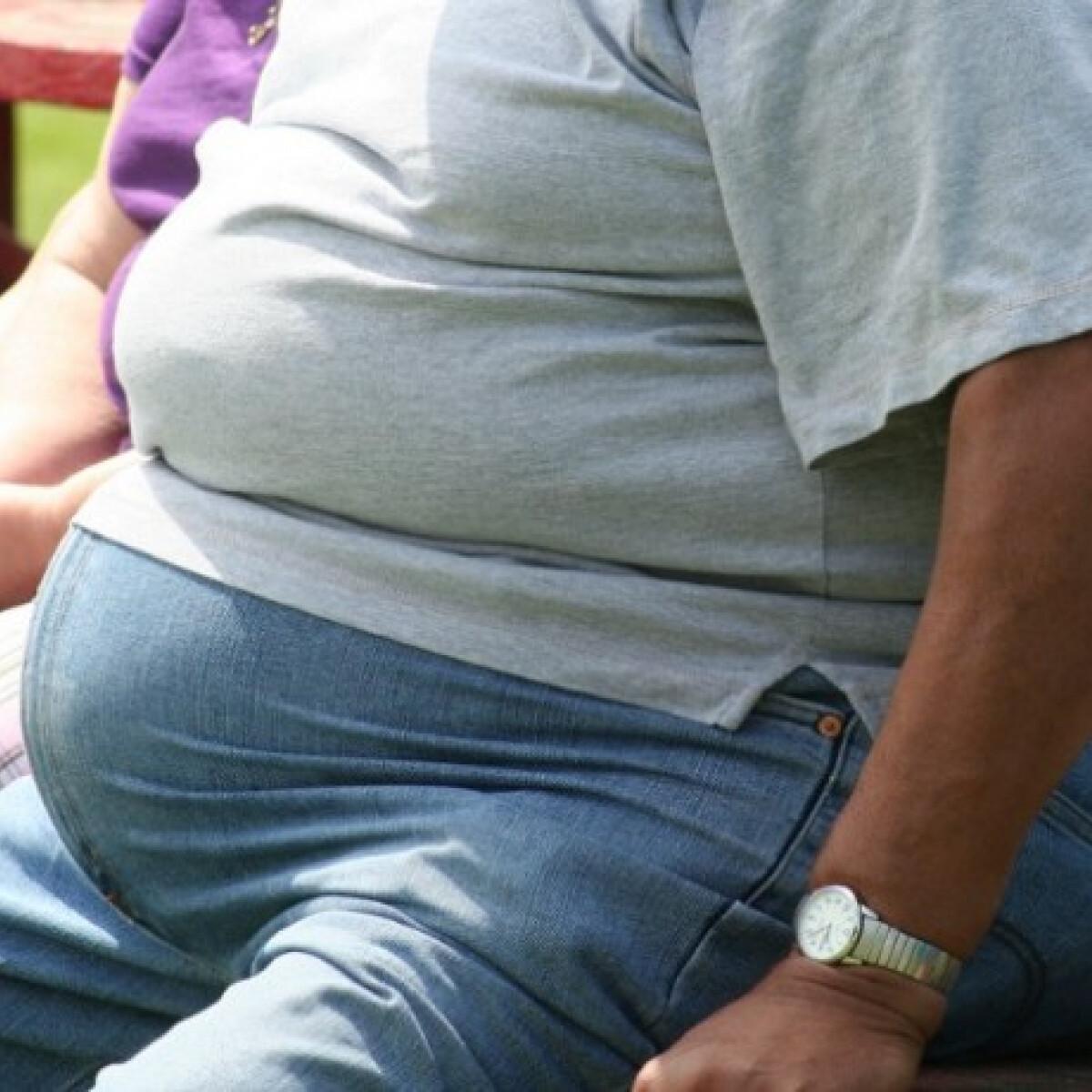 Zsírmáj: az elhízás egyik kevésbé ismert következménye