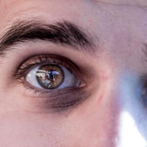 5 szuper házi praktika, amivel eltüntetheted a karikákat a szemed alatt
