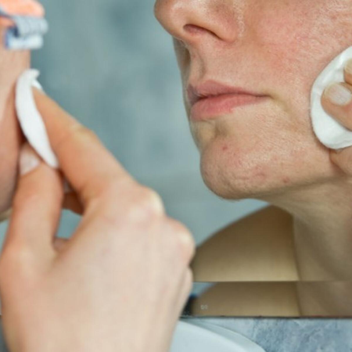 Komoly lelki következményei lehetnek az aknés bőrnek