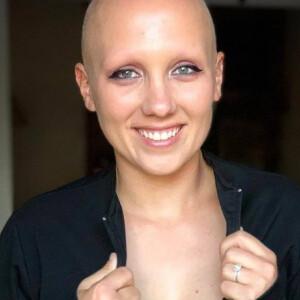 Ez a ritka betegségben szenvedő nő új szintre emelte a szépség fogalmát