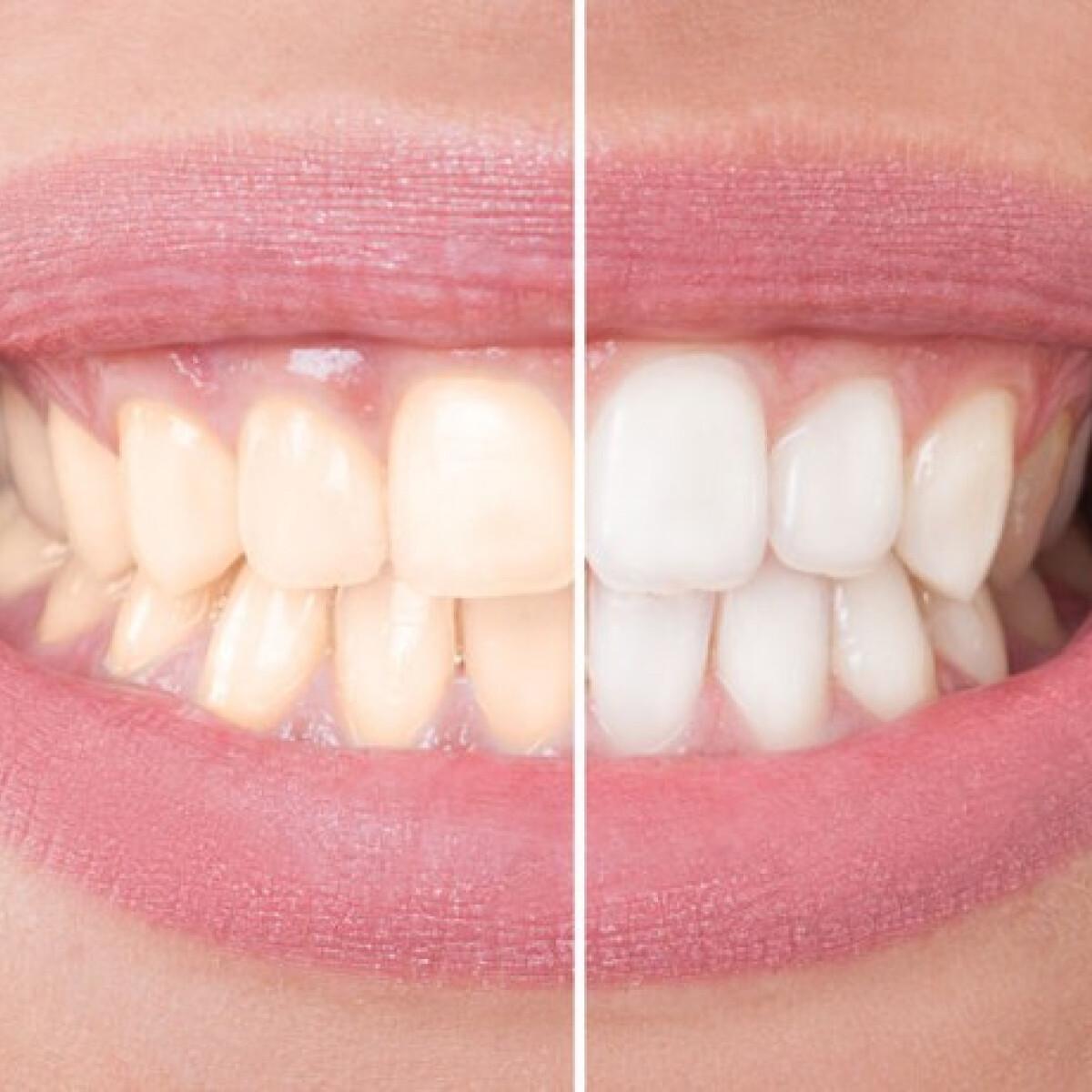 Fogfehérítő fogkrémek - vajon tényleg működnek? A fogszakorvos véleménye